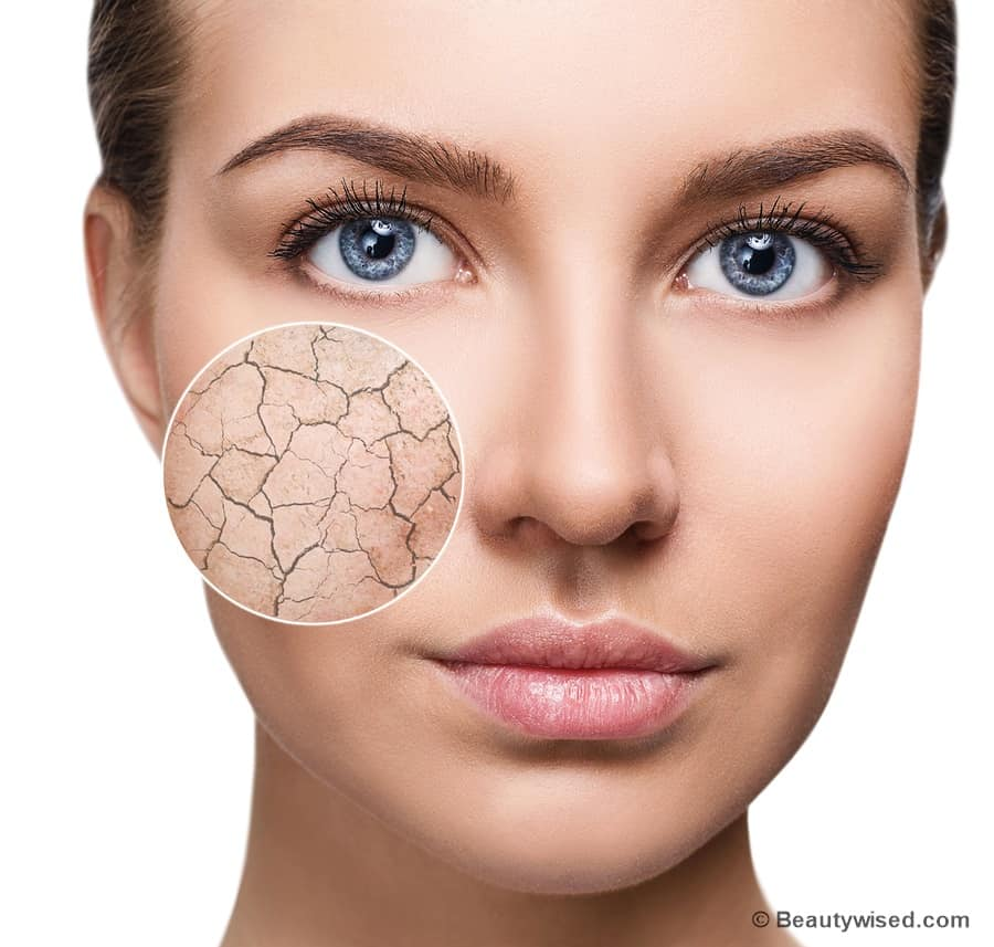 How to get rid of dry flaky skin on face?