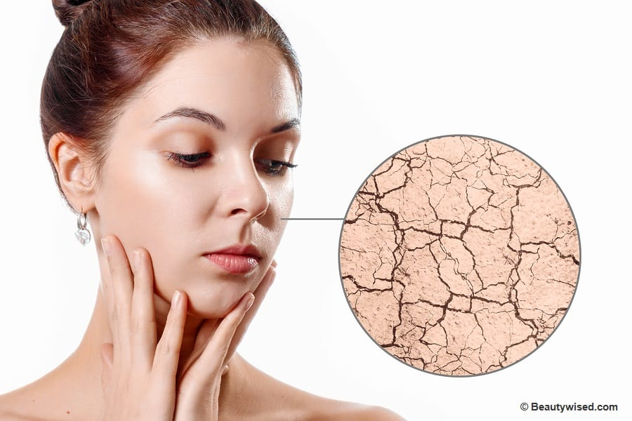 get rid of dry flaky skin on face