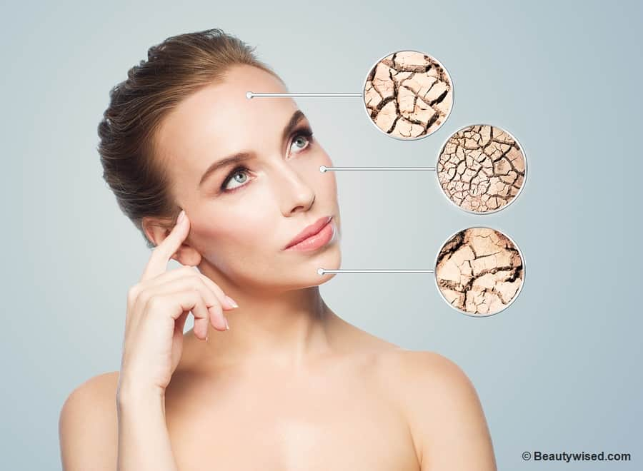 natural remedies for dry peeling skin on face
