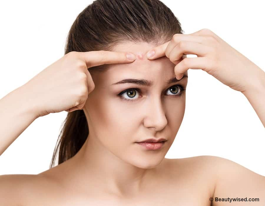 How to treat forehead acne?
