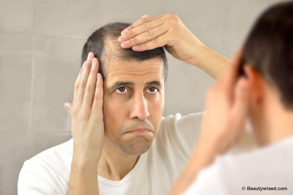 How to prevent hair loss to stop balding?