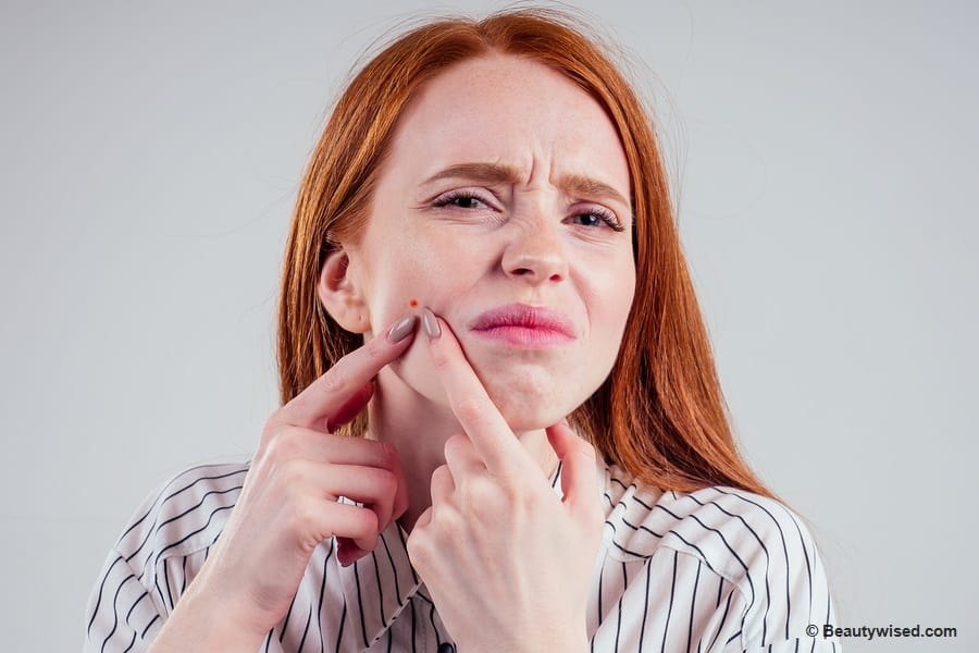 How to pop a cystic pimple safely?