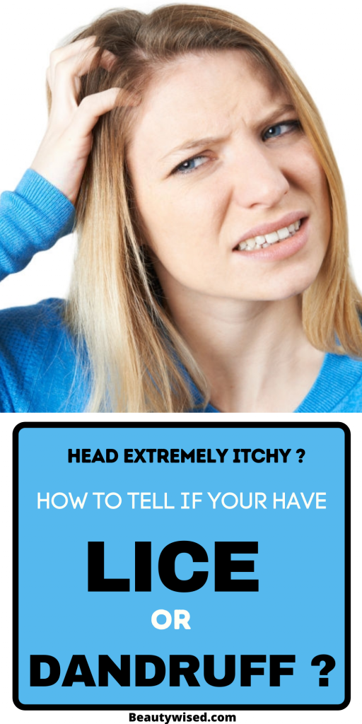 How to tell if you have lice or dandruff in your head?