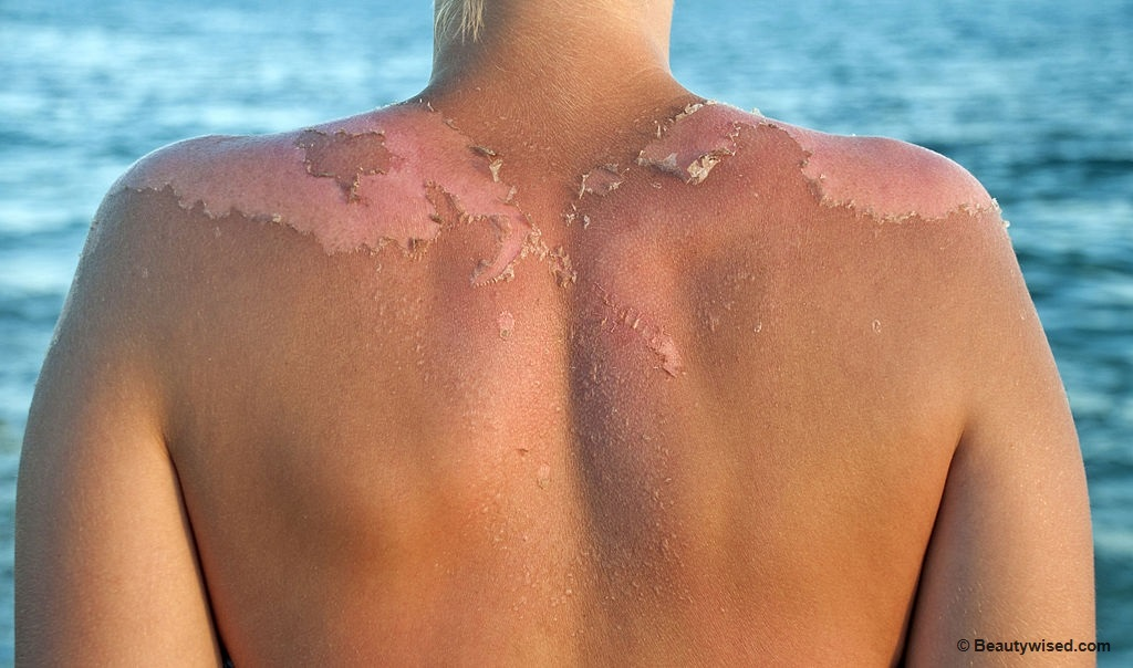 peeling skin causes and pictures