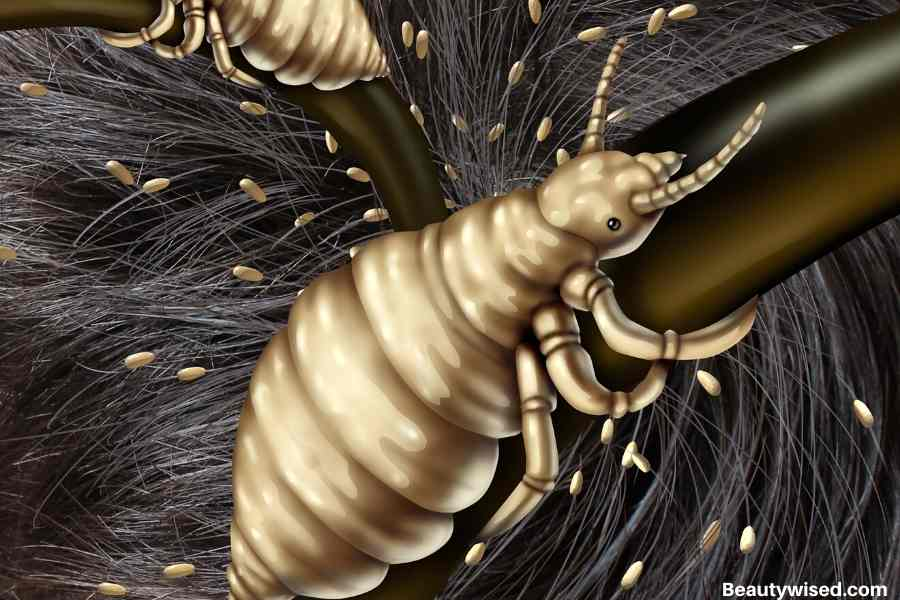 What are the causes of head lice?