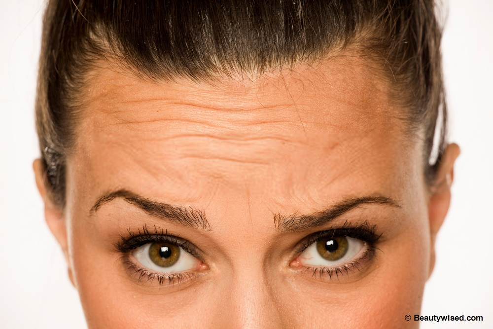 How to remove forehead wrinkles?