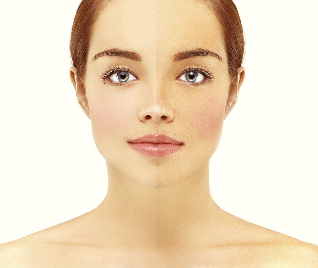 How to get rid of sunspots and get clear skin?