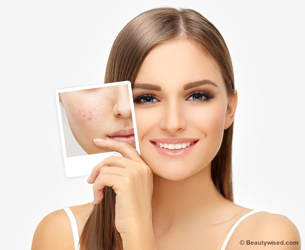 Prevention tips for acne scars