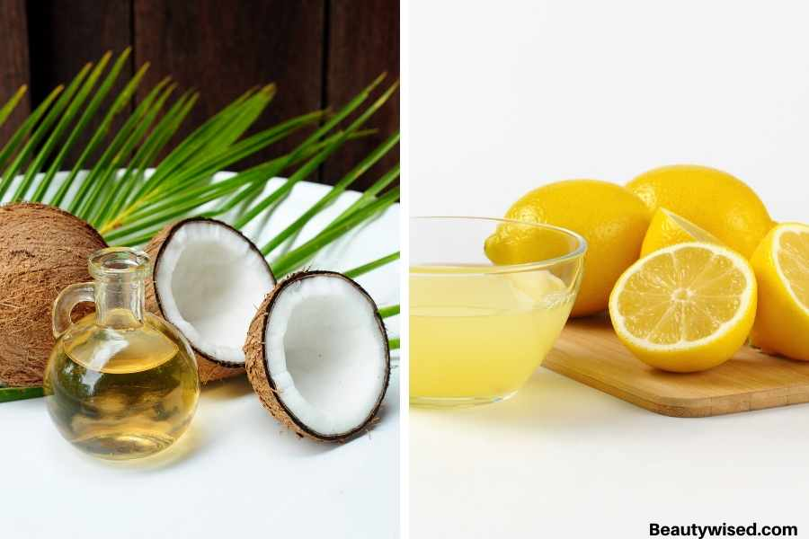 lemon juice and  coconut oil for dandruff