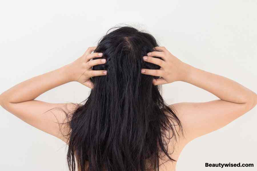 What is a scalp buildup ?