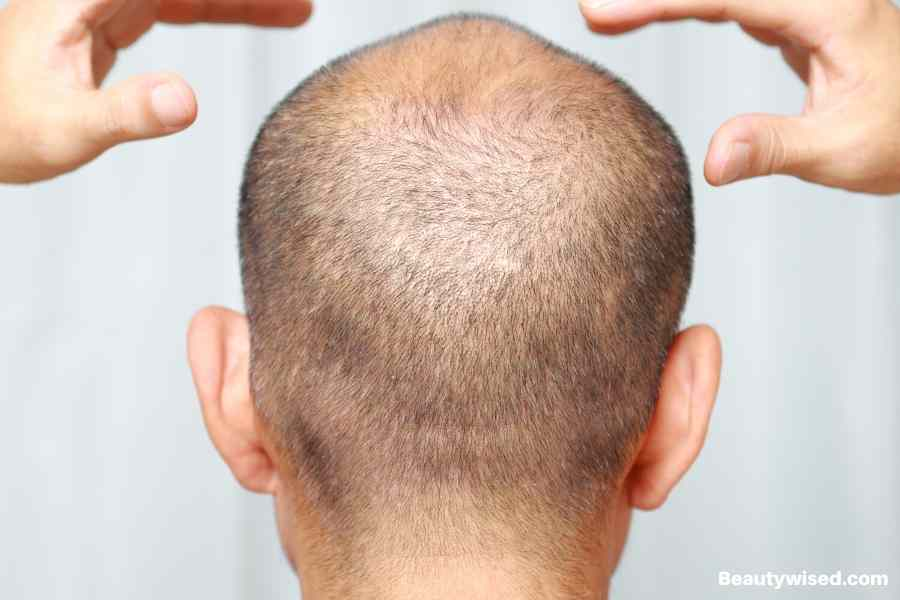 skin condition on scalp can stop hair growth