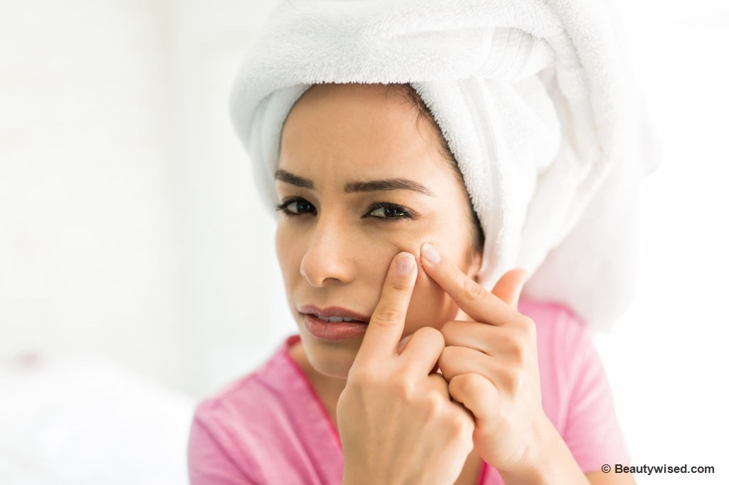 When to not pop a pimple?